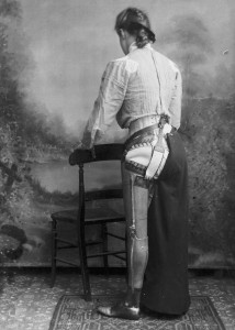 These Ingenious prostheses From 19th century helped 15,000 People Regain Mobility-4