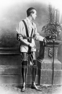 These Ingenious prostheses From 19th century helped 15,000 People Regain Mobility-6