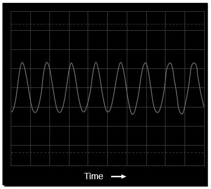 Oscilloscope display: voltage vs time